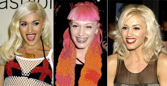 """Gwen Stefani rocked her braces as fashion! """"Ill Grills: Celebrity teeth makeovers"""" from NY Daily News http://nydn.us/H2kHlL"""