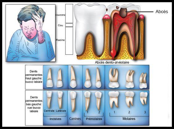 Les maux de dents peuvent varier considérablement d'une légère douleur à une douleur lancinante insupportable dans les dents ou autour de vos mâchoires. Les principales causes des maux de dents sont caries, une infection, une racine dentaire exposée, une dent fêlée, une maladie des gencives, un rebouchage flottant, ou un trouble de l'articulation de la …