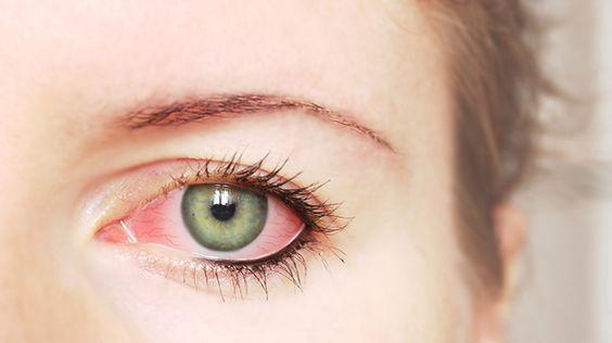 #Augengrippe auf dem Vormarsch - was tun? - https://www.gesundheits-frage.de/5356-augengrippe-auf-dem-vormarsch-was-tun.html