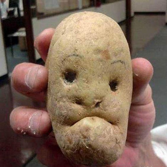 Thổi bay nám chỉ trong vài tuần bằng mặt nạ khoai tây