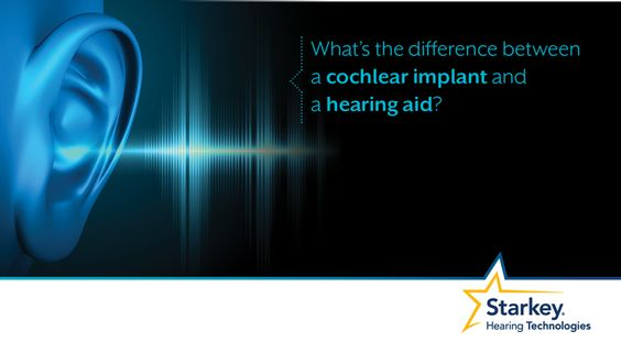 What's the difference between a cochlear implant and a hearing aid? Cochlear implants and hearing aids are both medical devices used to treat sensorineural hearing loss, the most common type of hearing loss.