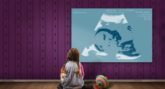Ultraschallbild auf Leinwand - das Geschenk zur Geburt - Ultraschallbilder von Ihrem Baby auf Leinwand