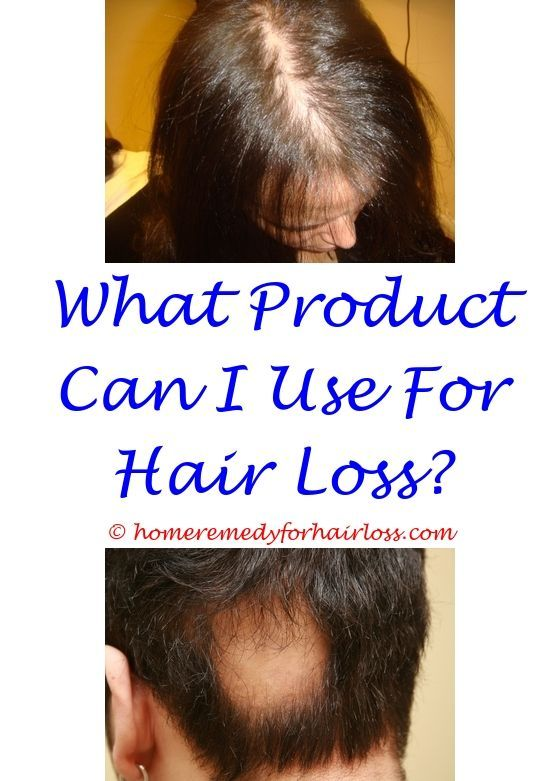 Pin On Lupus Hair Loss Treatment