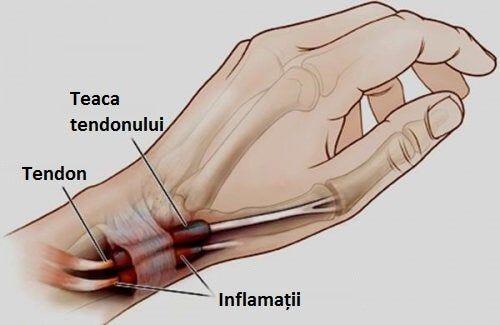 ce durere cu inflamația articulară cum să anesteziați durerile acute articulare