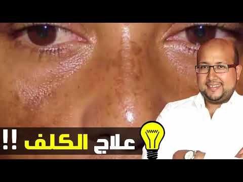 مشكلة الكلف و النمش و عدم توحد لون البشرة و علاجها في وصفة سهلة الدكتور عماد ميزاب Youtube Alc