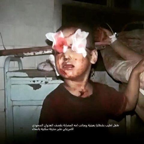 The sight of life was taken away from him along with his parents... #IsupportYemen #yemenunderattack  #yemen #saudi_destroy_yemen #instagood #instadaily #saudi_crimes