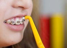 como blanquear los dientes con brackets