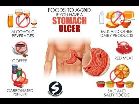 diet when you have ulcers
