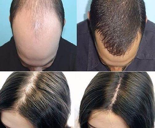 مجموعة حل مشكلة تساقط الشعر المقدمة من شركة فورايفر الو جوجوبا شامبو عالي التركيز لجميع أنواع الشعر غني بالأحماض ال Forever Living Products Instagram Beautiful