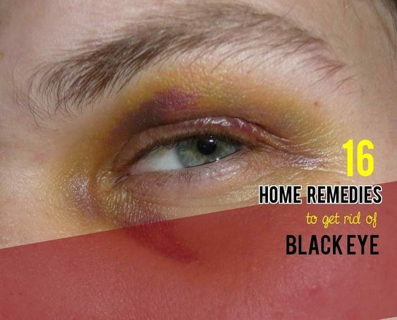 0a4bb0d279126ad982ba7c3a0c454935 - How To Get Rid Of Swelling Black Eyes Fast