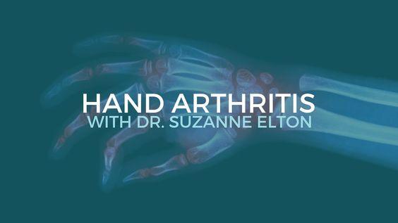 Many people believe that arthritis in the hand is just something that has to be lived with. That is not always necessarily so. Here is Dr.Elton, MD explaining the importance of hand specialist. Hand Arthritis & How to Treat It (with Dr. Suzanne Elton)
