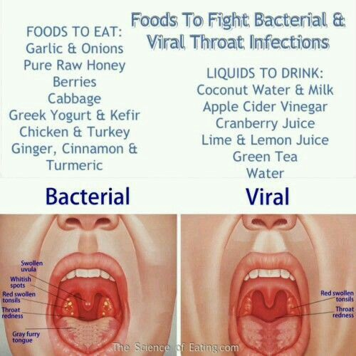 Differences between Bacterial vs Viral sore throat ...