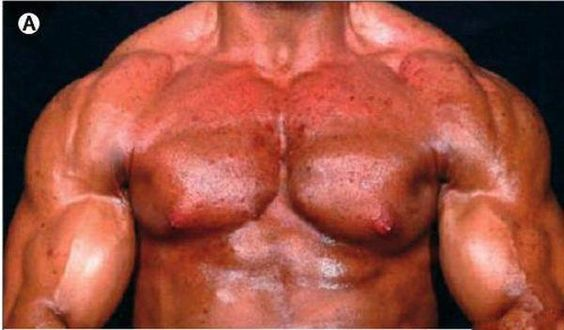 Worst Steroid Side Effects in Bodybuilding What are Anabolic Steroids? http://build-muscle-101