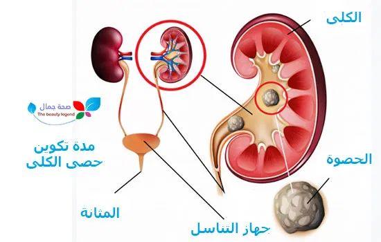 مدة تكوين حصى الكلى كيف تتكون و ما هي طرق الوقاية منها وكيف يشعر المريض بها Sehajmal Washer Necklace Push Pin