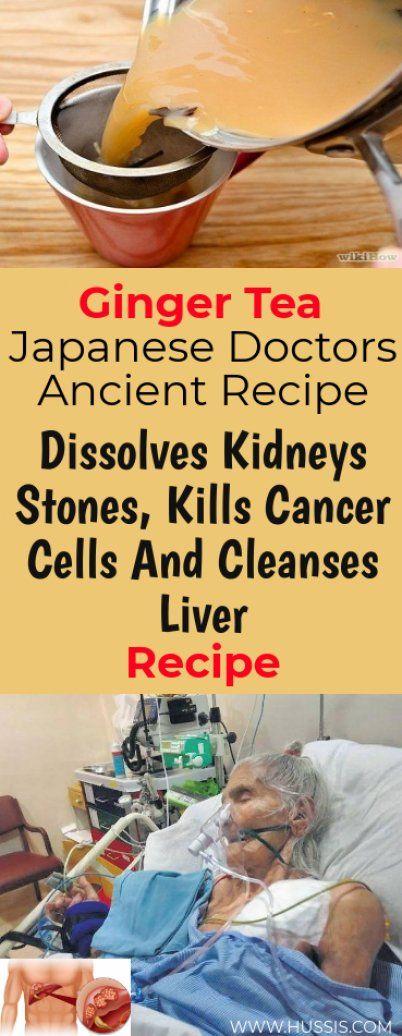 Ginger Tea: Dissolves Kidney Stones, Cleanses Liver And Kills Cancer Cells – Recipe!