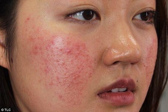 Da bị nám đỏ là gì ? - Cách phòng ngừa và giải pháp điều trị khi da bị nám đỏ