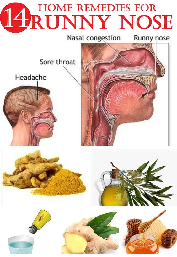 Get Rid Of Running Nose Home Remedy