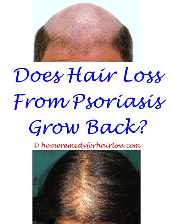 What Can Cause Hair Loss In A Woman Cat Skin Problems Hair Loss Hair Loss Conference 2017 Maca Powder Hair L Nizoral Hair Loss Hair Loss Cure Hair Loss Pills