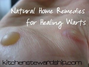 Warts home remedies can be simple, natural, and not even that expensive. Over a dozen ways to get rid of warts naturally! My home remedy even worked to remove warts on my face.