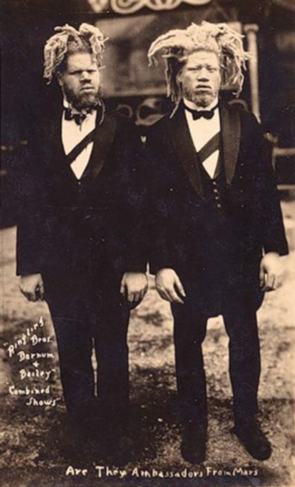 George and Willie Muse were kidnapped and taken to the circus at a young age, and worked for Al G. Barnes for 28 years without pay. During their time as sideshow performers they were billed as 'White Ecuadorian Cannibals,' 'Sheep-Headed Men,' 'Sheep-Headed Cannibals' and, famously, '