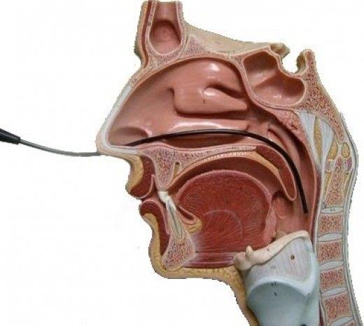 How is globus pharyngeus treated?