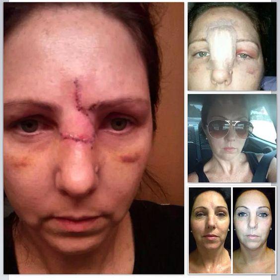 orlando facial scar revision