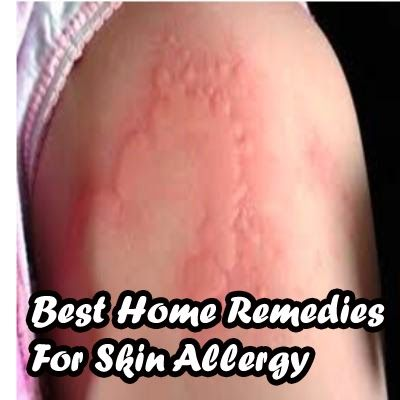 skin allergy home remedy essay There a number of home remedies that people have used for years to relieve the  symptoms caused by allergic skin reactions here are some of.