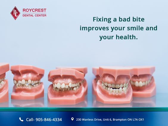 Fixing a bad bite improves your smile and your health.  #Dentistinbrampton #bramptondentist #Fillingsinbrampton #Dentalinbrampton #implantology #orthodontics  #dentist  #dentistry #invisalignlife #brampton #ontario #brampton  #dental #smiledesign  #students #implant