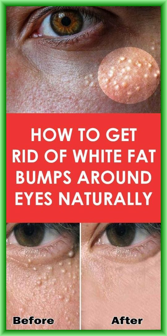 0b5fcb0e26700e74f823f53f3ec2b82c - How To Get Rid Of Spot Lump Under Skin