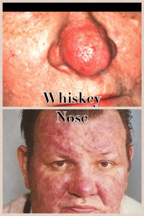 how to fix rosacea nose