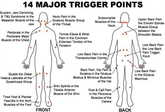 Pin By Andrea Schrader On Health Trigger Points Trigger Point Therapy Medical Massage