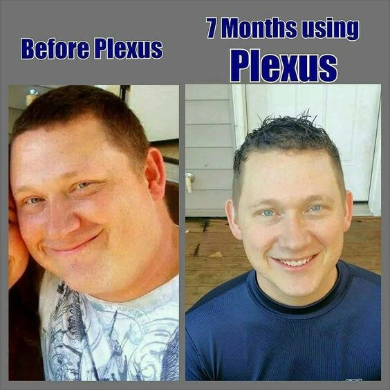 plexusslim.com/fitnessjunkie  Plexus saved Tobin, he was almost 300 lbs and had a terrible diet full of soda, fast food and tons of coffee that his body was addicted to. After 7 months on plexus, he's dropped 50 lbs, went from size 42 to 36 and his health dramatically improved! #plexusworks #60dayguarantee #healthyliving