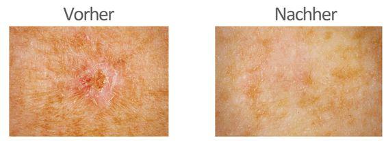 Produkttest: Das tetesept Narben Gel