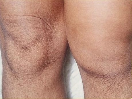 SOA-arthritis.jpg