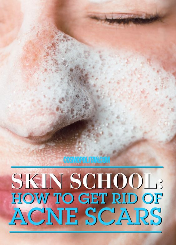 HOW TO GET RID OF ACNE SCARS: Here you'll find a roundup of the best products made to get rid of all your acne scars and dark spots. Use these masks, serums, treatments, and concealers to get sexy and smooth skin. Find the best acne products and skin tips here.