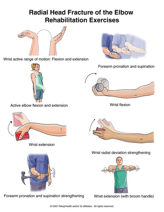 Radial head fracture of he elbow rehabilitation exercises ...