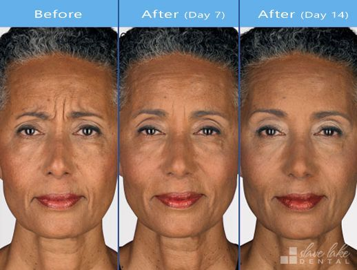 You Could Have Your Botox Treatment Delivered By Your Trusting Dental Family Photographs Are For Informat Botox Before And After Botox Botox Injections