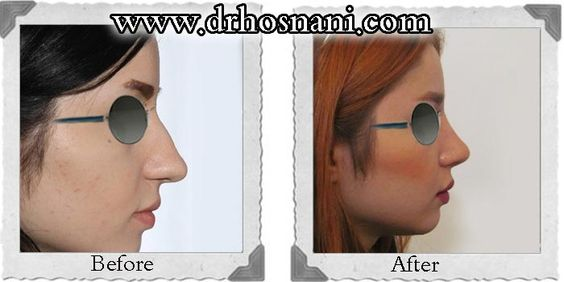 Dinaric Nose