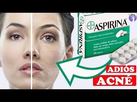 yodo sirve para el acné