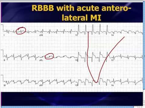 ☞ MD ☆☆☆ #ECG learning resource. #cardiology