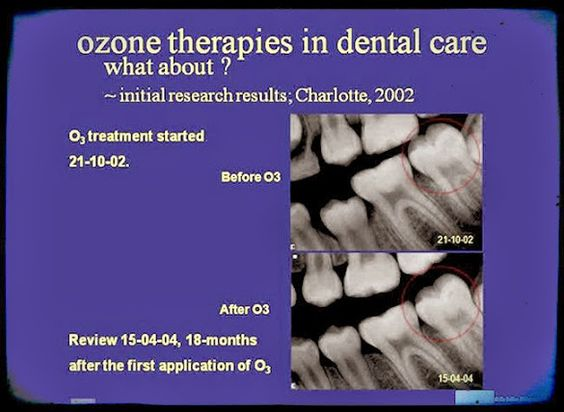 Videoconferencing: Ozone Therapy's Promise to Save Lives, Not Just Teeth | Presenter Dr. Julian Holmes | Odonto-TV