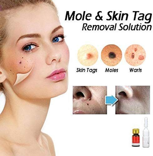 Buychoice Mole Skin Tag Removal Solution Painless Dark Spot Removal Face Wart Tag Freckle Removal Cream Ama Skin Tag Removal Skin Tag Removal Cream Face Warts