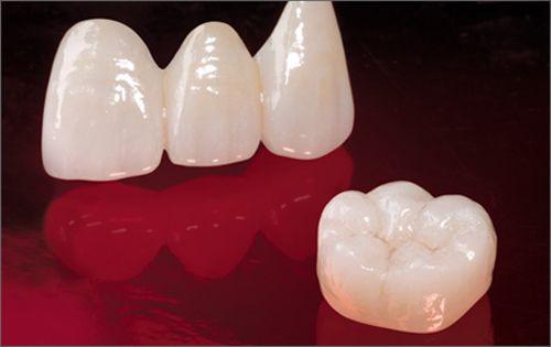 Răng mọc lệch thường không theo bất kỳ một quy luật nào, có thể răng bạn mọc nghiêng, chen chúc hay hô móm, khấp khểnh… tuy nhiên dù cho là răng mọc lệch kiểu gì thì cũng đều rất mất thẩm mỹ. Nếu muốn tìm cách xử lý răng mọc lệch hiệu quả nhất, bạn đừng nên bỏ qua những cách khắc phục răng mọc lệch trong bài viết sau đây