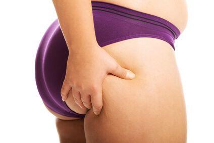 Last van dikke benen en billen? Dan is de kans groot dat je als vrouw last hebt van oestrogeen dominantie.: