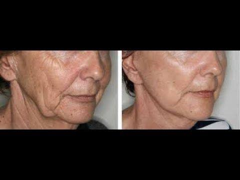 Jugos naturales para la flacidez del rostro