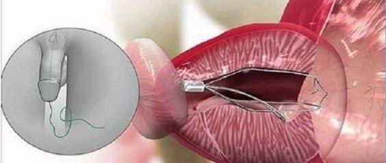 Atenção, homens! Este remédio é a melhor solução natural para doenças na próstata! - http://comosefaz.eu/atencao-homens-este-remedio-e-a-melhor-solucao-natural-para-doencas-na-prostata/
