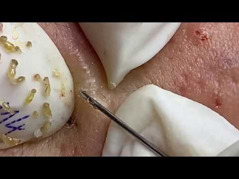 Remove Lots Of Blackheads And Whiteheads 114 Loan Nguyen Youtube Blackheads Blackheads Popping Whiteheads