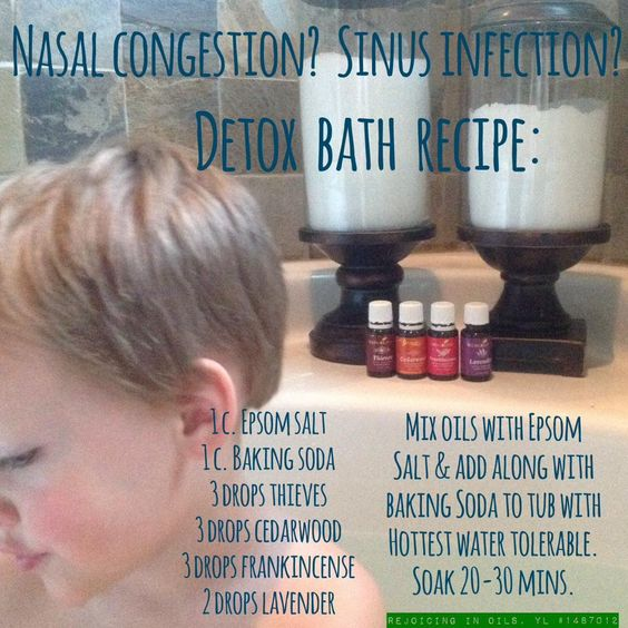 Awesome recipe for congestion #EssentialOils