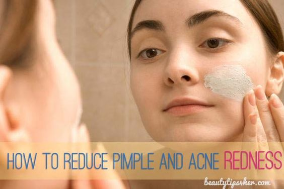 how to get rid of redness from acne