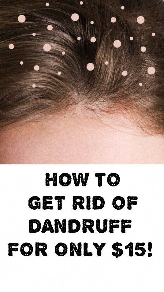 0e30d508046cf277971938750c5e70ed - How To Get Rid Of Dandruff In Baby Hair